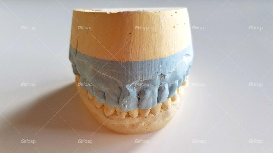 Dental crown molding